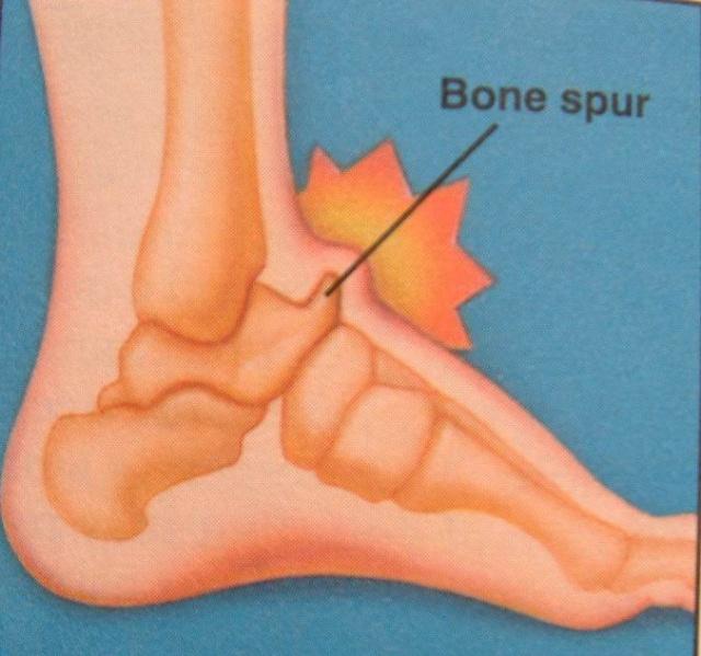 足踝前方疼痛是怎么回事