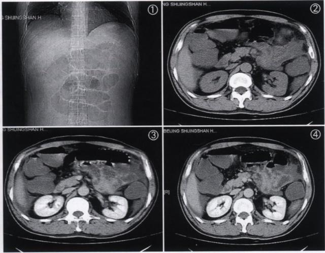 小肠肠壁的亚显微结构示意图.