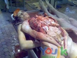 作为西医学的基础学科 人体解剖学也开始传入中国
