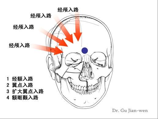 重视垂体腺瘤诊断和微创治疗